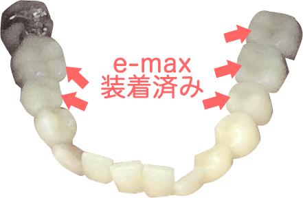 e-max装着済み